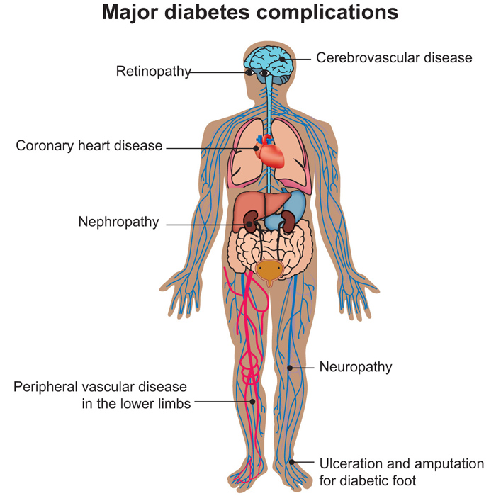 complications of type 2 diabetes fight diabetes