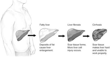 Pioglitazone (Actos) Helps Reverse Fatty liver in Diabetes